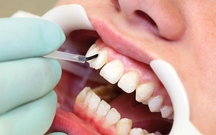 Bonding nedir? Dişlerdeki kırık probleminin tedavisi hakkında bilgi