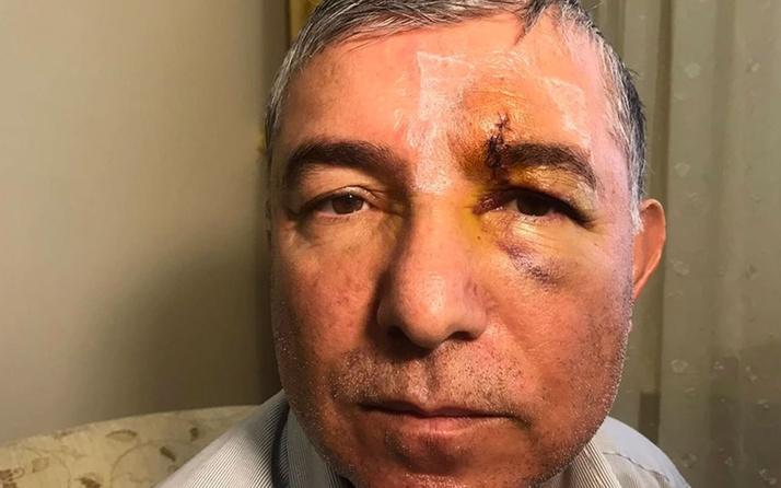 İstanbul Ümraniye'de muştalı dehşet