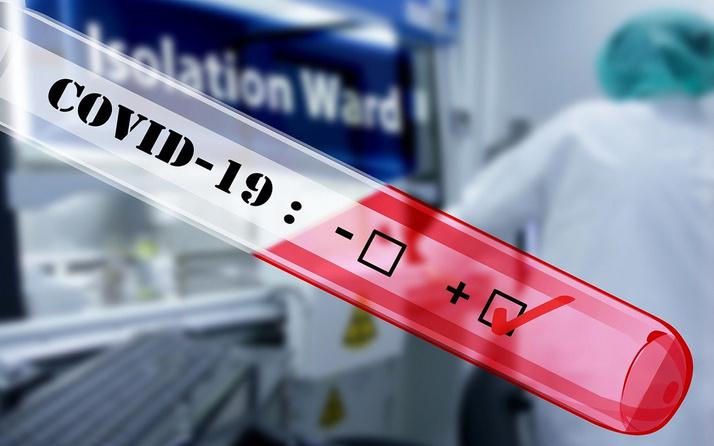 Koronavirüsle ilgili müthiş gelişme! 17 yıl önceki hastanın kanında çare bulundu
