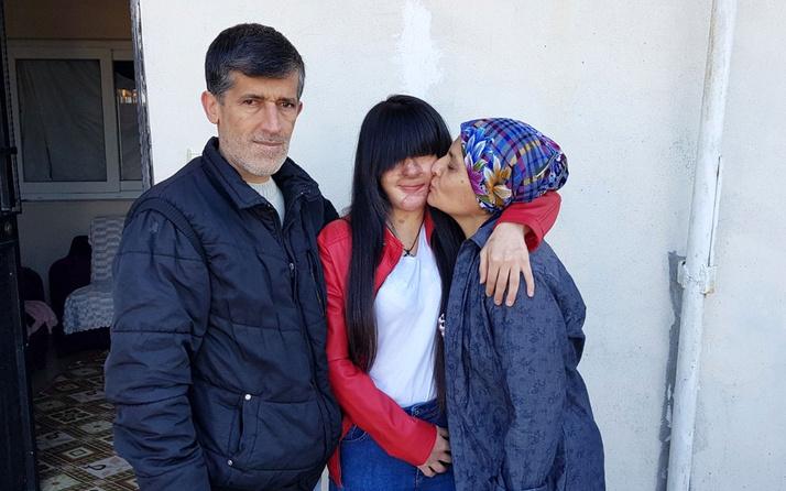 Sevgilisinin yüzüne asit döktüğü Berfin: Ozan'a hakkımı helal ettim