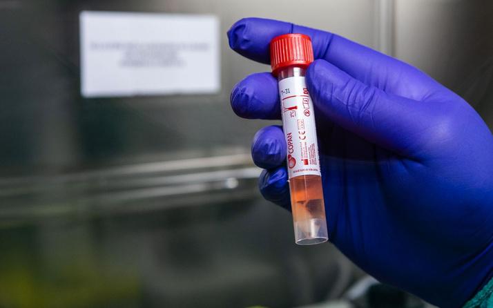 Yavru vatan Kıbrıs'tan sevindiren haber! 16 gündür yeni koronavirüs vakası yok