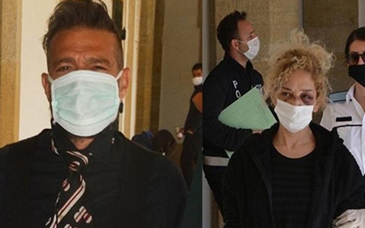 Sevgilisini döven ünlü sanatçı KKTC'de gözaltına alındı