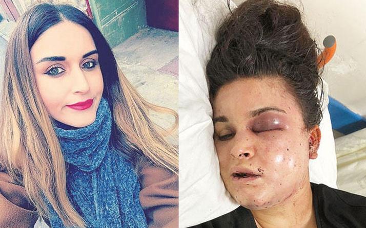 İstanbul'da kadını ormana kaldırdılar, sandalyeye oturtup işkence ettiler