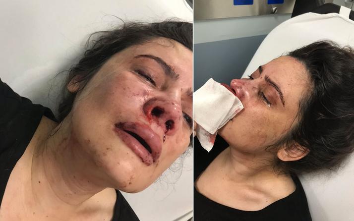 Hira Elbasan'ın anne çığlığı! Boşanmak isteyen eşini feci bir şekilde dövdü silah çekti