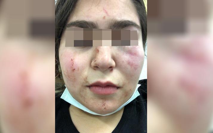 Alman polisi Türk baba ile kızına şiddet uyguladı