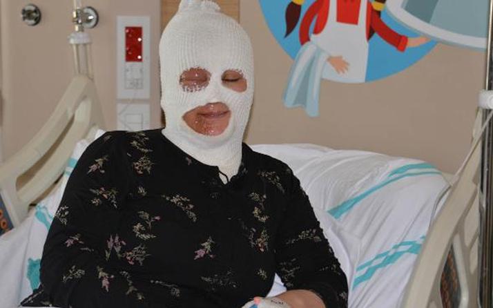 Olay yeri Bayburt! Demlediği çay üstüne dökülen kadın ağır yaralandı