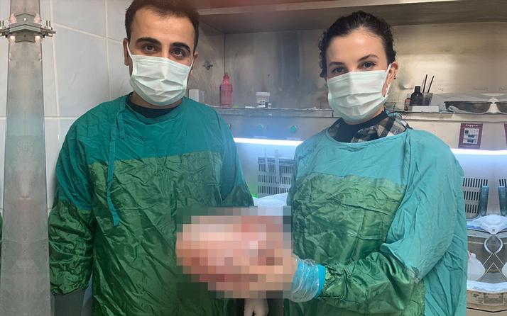 Doktorlar şaştı kaldı! Batman'da karın ağrısıyla hastaneye gitti karnından 5 kilo çıktı