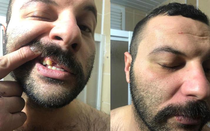 Antalya'da dezenfektan molalı polis dayağına dava