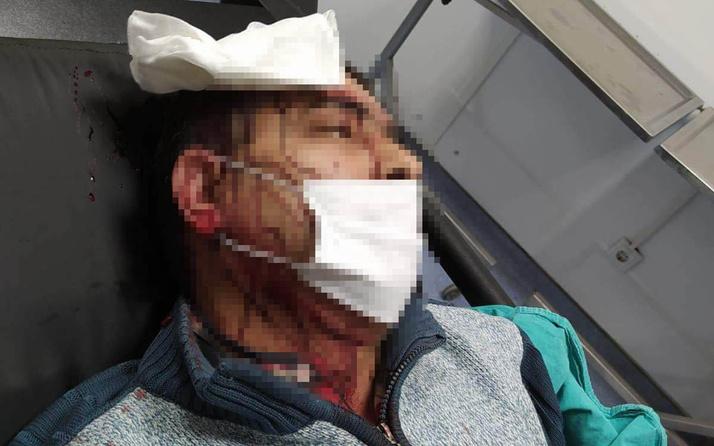 Amasya'da imamın tabureyle saldırdığı müezzinin kafasına 10 dikiş atıldı