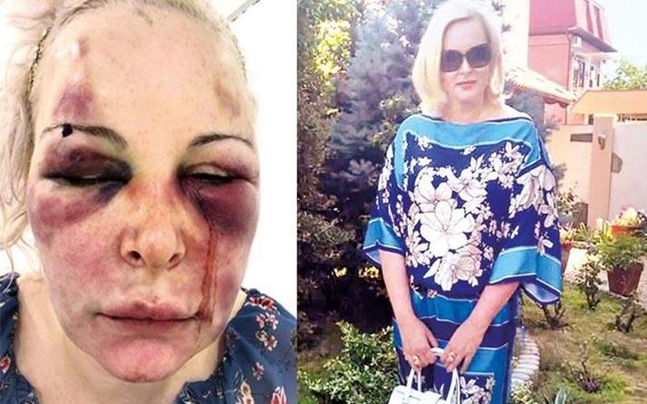 İstanbul'da Rus sevgiliye otel odasında dayak! Alp Mutlu hakkında istenen ceza belli oldu