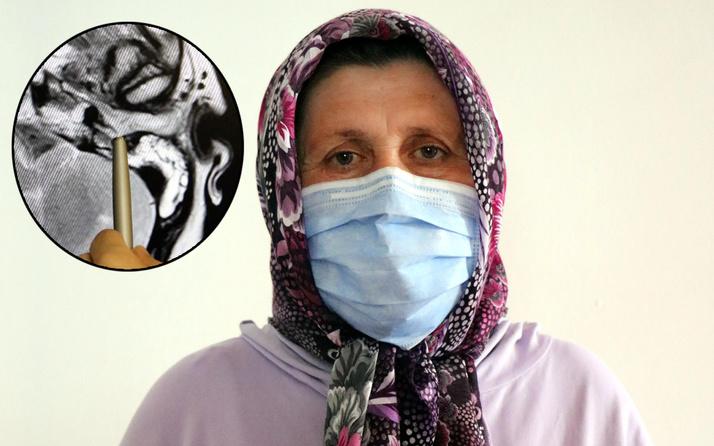 Zonguldak'ta doktorlar şaştı kaldı! Meslek hayatında ilk kez karşılaştı: Milyonda bir görülüyor