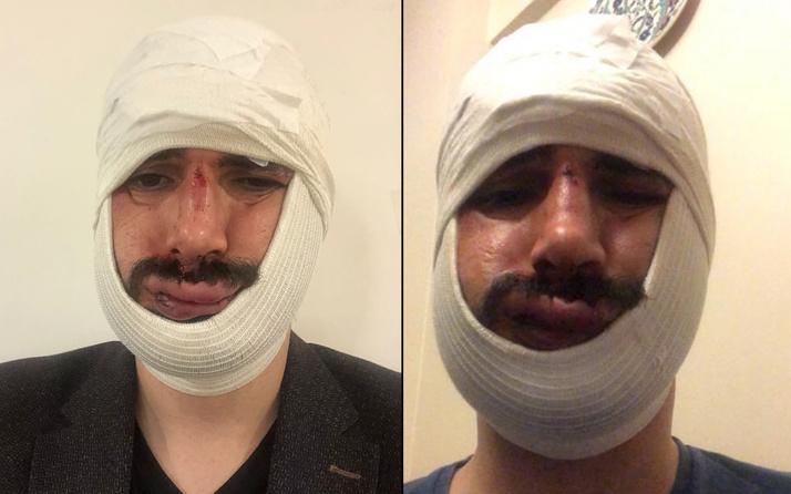 Anadolu Ajansı muhabiri dehşeti yaşadı! Yüzüne onlarca dikiş atıldı