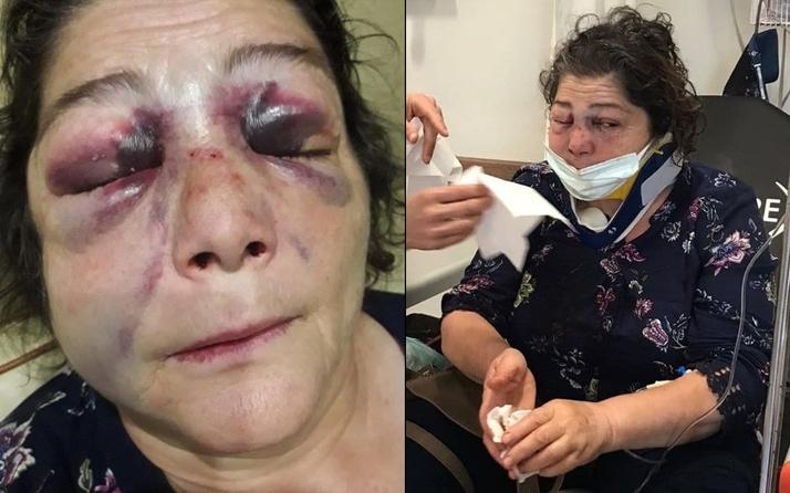 Giresun'da CHP'li başkana o sözleri söyleyince kadını bu hale getirdiler! Başkanın savunması pes dedirtti