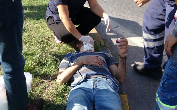 Zonguldak'ta feci kaza! Yüzünde kesikler oldu kanlar içinde kaldı: Meğer...