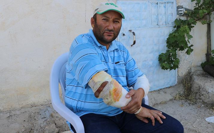 Denizli'de alevlerin arasında kalan vatandaş: Kollarımın eridiğini gördüm