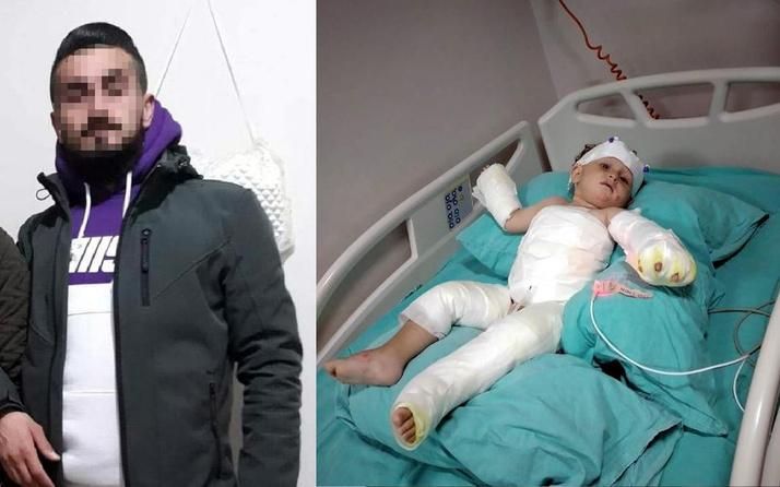İzmir'de kolonya döküp eşi ve oğlunu yaktı! Sözleri pes dedirtti