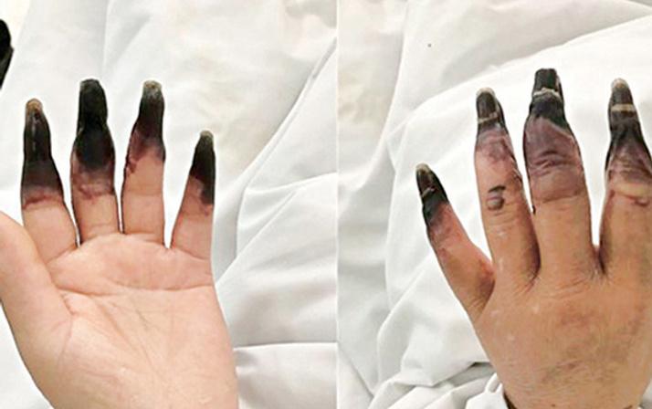 Küçük yara deyip önemsemedi parmaklarının kesilmesi ile karşı karşıya kaldı