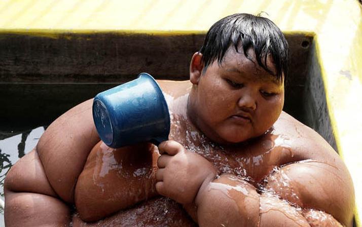 Dünyanın en kilolu çocuğuydu son haline bakın