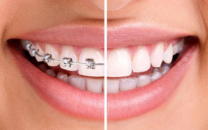 Çarpık dişlere telsiz çözüm nasıl olur İşte cevabı...