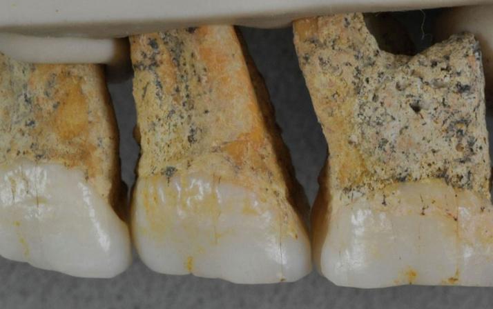 67 bin yıllık fosillerden çıkanlar şaşırttı en eski insan türü keşfedildi