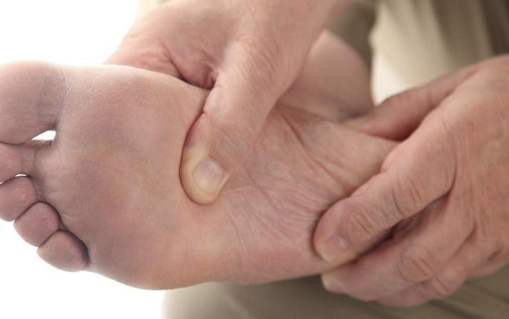 Ayak şişmesi nedeni nedir ayakların altı neden yanar?