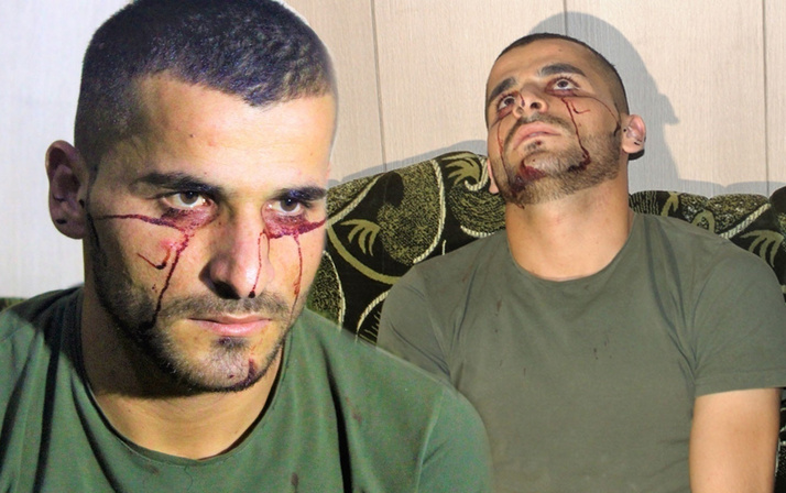 Iraklı genç kan ağlıyor! Hastalığına çare bulunamadı Türkiye'den yardım istedi