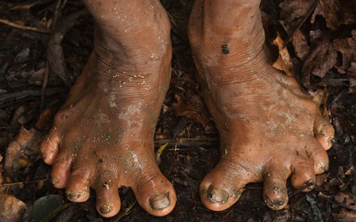 Film sahnesi değil tamamen gerçek! Bu ayakların sahibi...