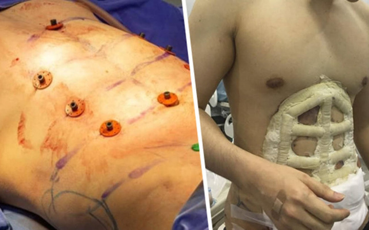 Erkeklerde yeni moda: Ameliyatla baklava yaptırıyor!