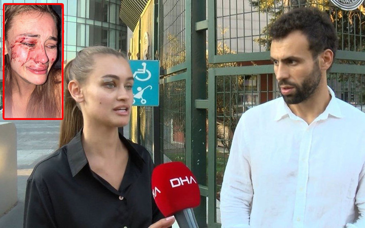 Çeşme'de dövülen model Daria Kyryliuk'un ifadesi ortaya çıktı! Detaylar korkunç