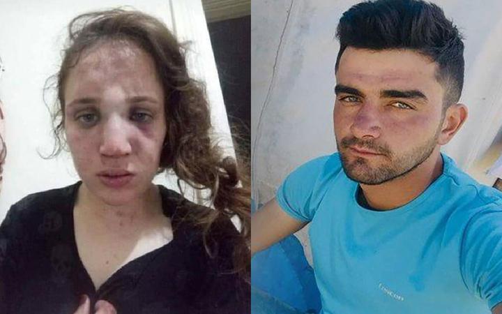Aydın'da akılalmaz işkence! 3 çocuk annesi kadını bu hale getirdi!