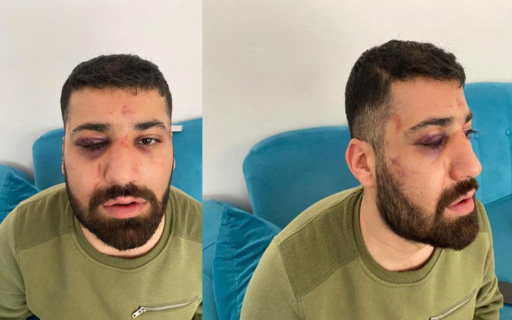 İstanbul'da 'polis dövdü' dedi nezarethane görüntüleri foyasını ortaya çıkardı