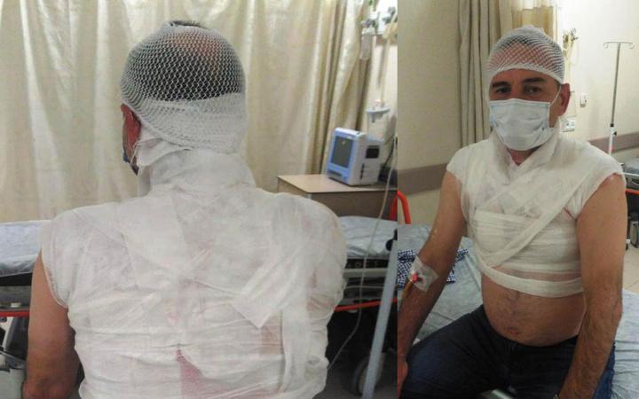 Edirne'de dehşet! Tartıştığı komşusunun üzerine kaynar su döken kişi gözaltına alındı