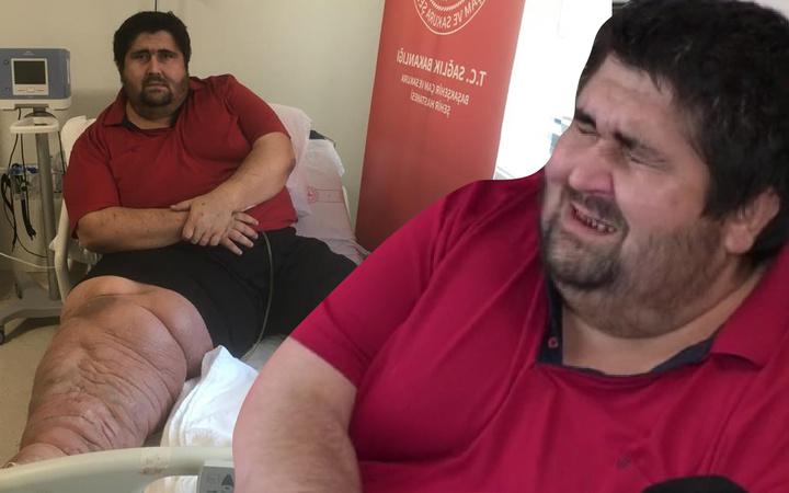 8 yıl önce öğrendi 300 kiloya çıktı! Gözyaşlarıyla anlattı: En büyük hayali...