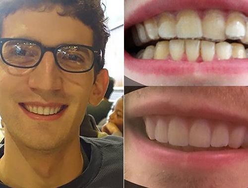 3D yazıcı ile dişlerini düzeltti