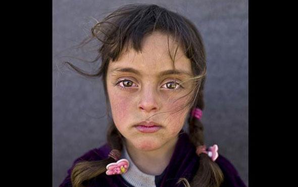 Yılın fotoğrafının kahramanı Suriyeli minik Zehra oldu