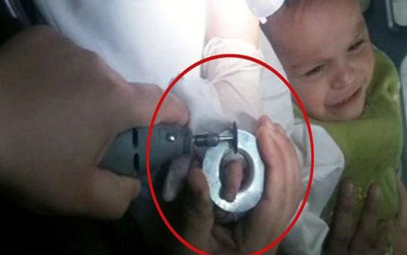 Parmağı küllüğe sıkışan bebek böyle kurtarıldı