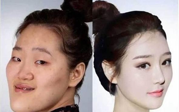 Korelilerin estetikde sınır tanımıyor