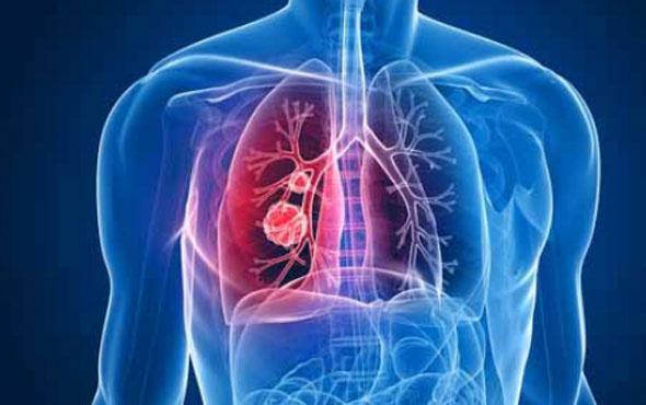 Akciğer kanserinde yeni şifa kapısı