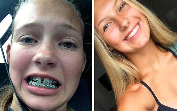 Dişlerini yaptıran insanların muhteşem değişimi