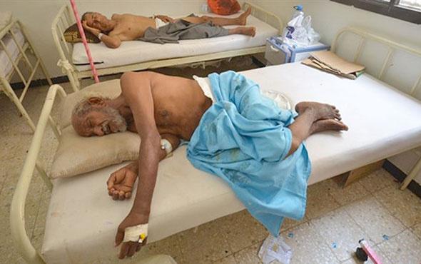 Yemen'de kolera salgınının bilançosu artıyor ölü sayısı 923'e yükseldi