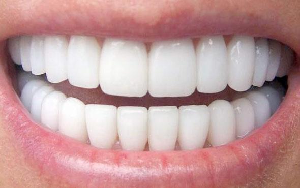 Stresten dişlerinizi kaybetmeyin