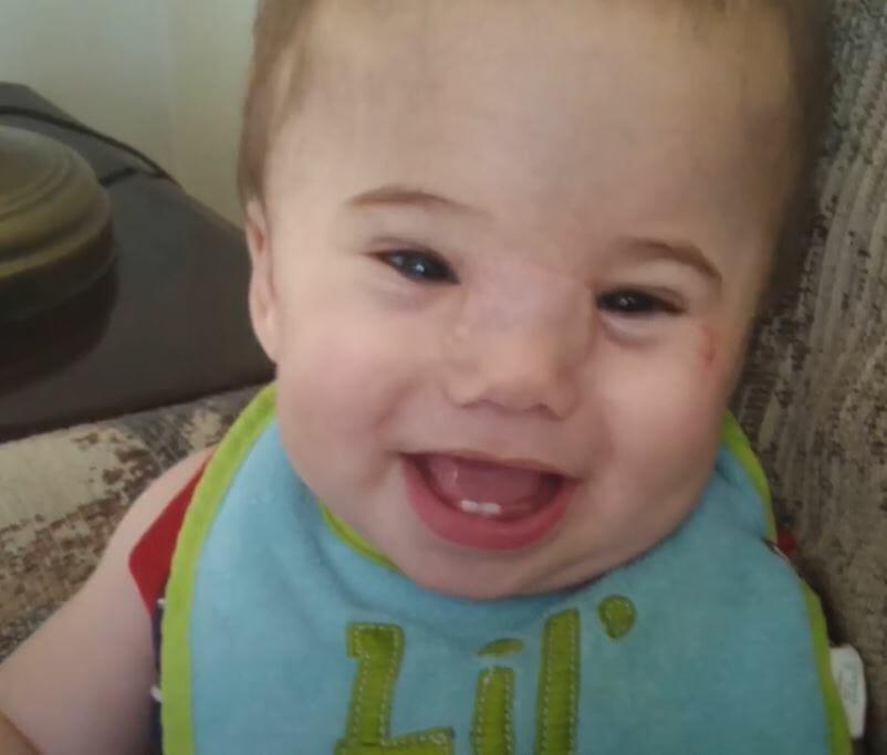 Bebeğin yüzündeki yumru gittikçe büyüyordu doktor gördü ve... - Sayfa 3