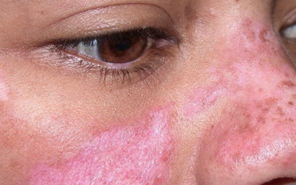 Lupus hastalığı nedir SLE ölümcül müdür belirtisi ve tedavisi