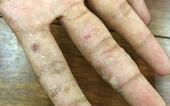 Lupus hastalığı bulaşıcı mı SLE hasta yorumları neler söylediler