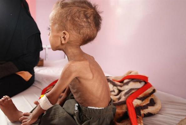 85 bin bebek açlıktan hayatını kaybetti Yemen kan ağlıyor