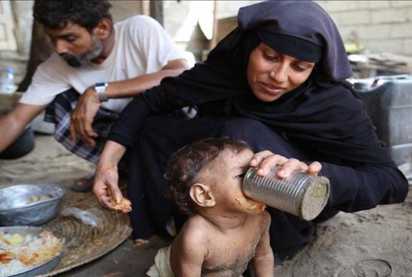 821 milyon kişi açlıkla mücadele ediyor
