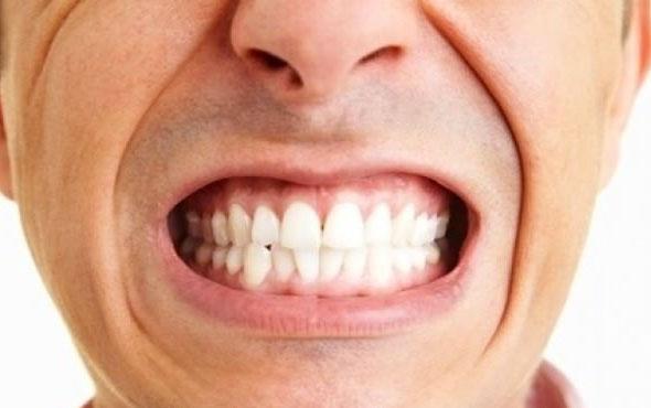 Diş sıkma probleminin tedavisi nasıl yapılır tehlikesi var mıdır?