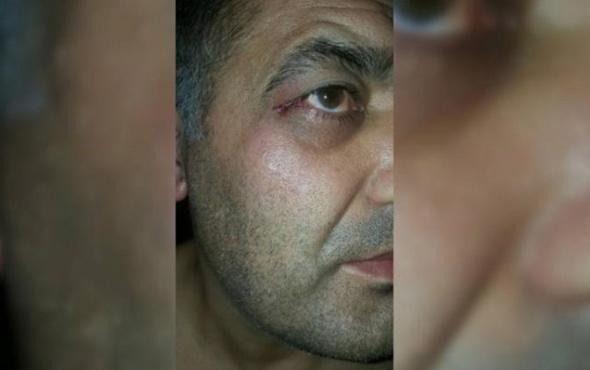 Afiş asmak isteyen Saadet Partili başkana saldırı!