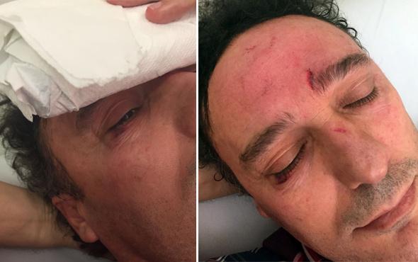 İstanbul'da hasta yakını doktoru darp etti