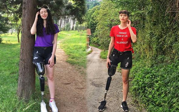 Kanser ondan bacağını almıştı Neslihan Tay 3. kez kansere yakalandı!